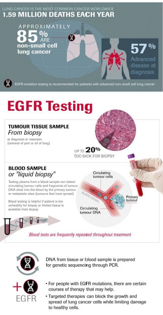 new blood testing technology, liquid biopsy, is used for tracking EGFR mutations in lung cancer cases